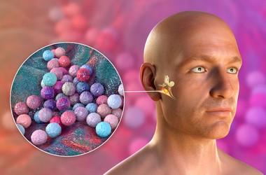 Jakie są objawy zakażenia gronkowcem złocistym? Jakie są przyczyny tej choroby?