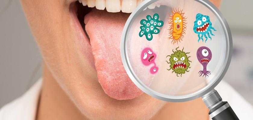 Zapalenie jamy ustnej – przyczyny, objawy, sposoby leczenia