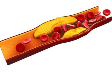 Co to jest cholesterol? Jak się go mierzy i jakie są jego normy?