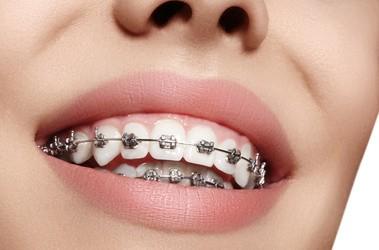 Po co zakłada się aparat na zęby? Rodzaje i ceny aparatów ortodontycznych