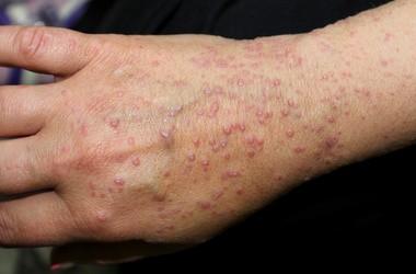 Liszaj płaski – kluczowe informacje o chorobie. Jak leczyć liszaja płaskiego?